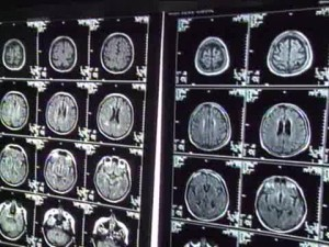 Brainscans of Alzheimer's patients